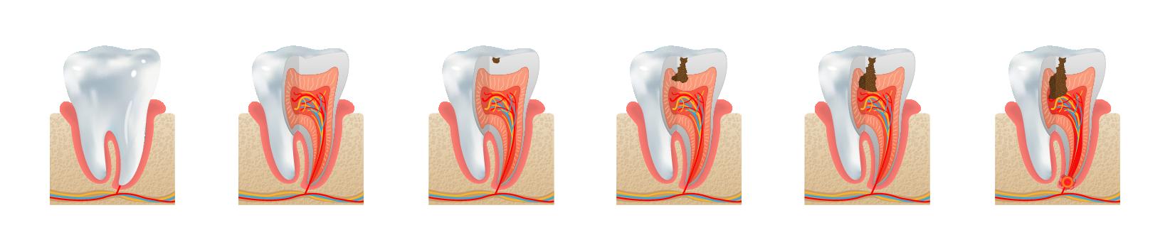Cavity Formation